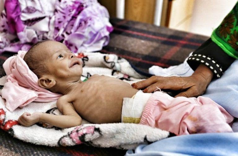 Et barn, der lider af alvorlig underernæring, er indlagt på Al-Nasr hospitalet i provinsen Al-Dhale. Foto: MSF