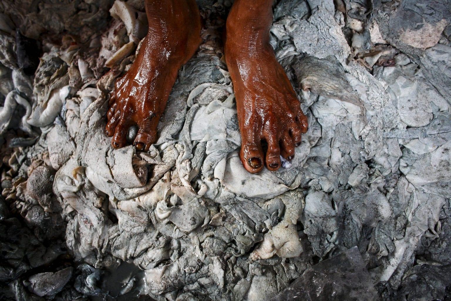 Arbejdet med farlige kemikalier udføres ofte uden sikkerhedsudstyr. Foto: GMB Akash