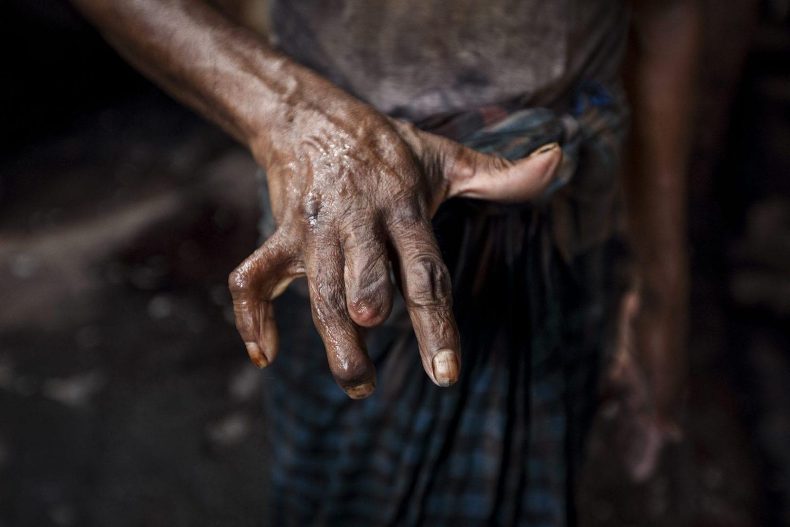 Anowar har mistet en af sine fingre i arbejdet på en garverifabrik - han har arbejdet der i 40 år. Foto: GMB Akash