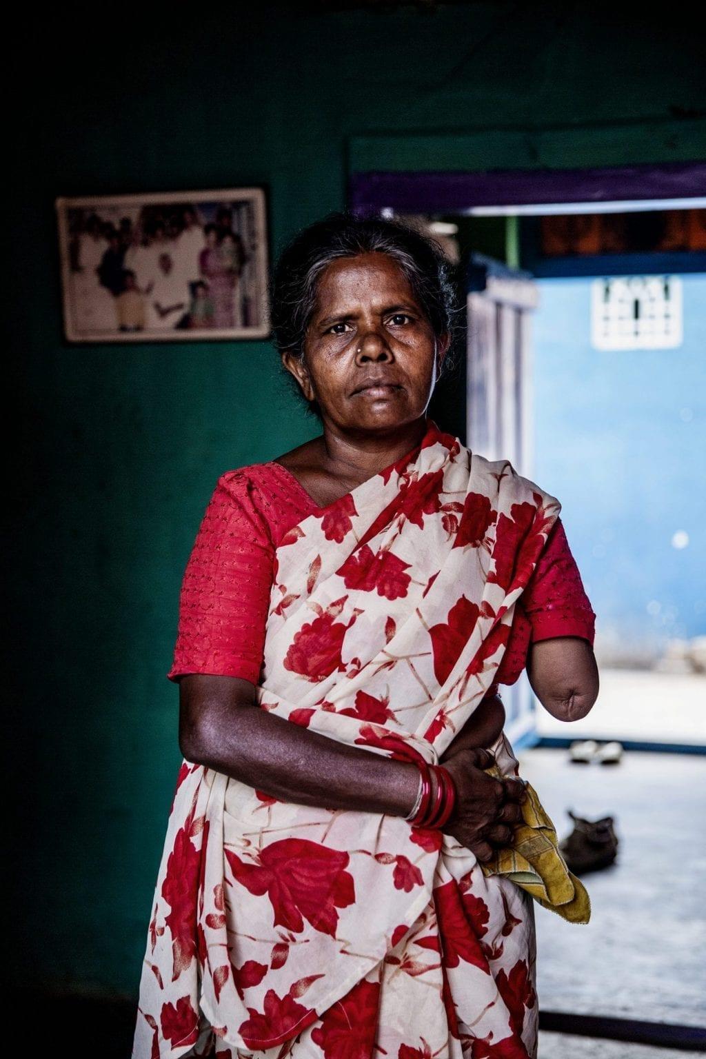 Kvinden her hedder Malar. Hun mistede sin arm i en arbejdsulykke på et garveri i Vaniyambadi for 10 år siden, da hendes arm kom i klemme i en maskine. Malar var i oplæring på garveriet, men nåede ikke at være der længe, før ulykken skete. Foto: Uffe Weng