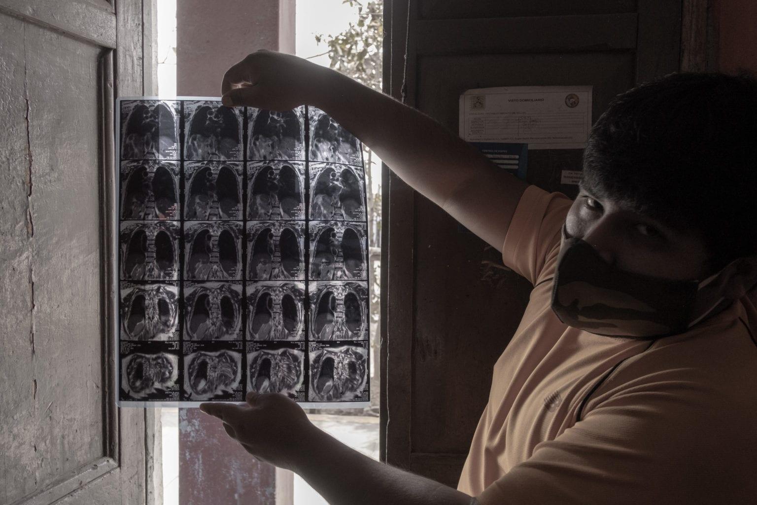 Maria Angela Mori er syg. Hendes søn Juan Jose Camarena viser et røntgenbillede af Maria Angelas lunger frem. Han fortæller, at hun har KOL. Mange af indbyggerne i kvarteret her, som ligger tæt op ad en fiskemelsfabrik, døjer med luftvejssygdomme som astm