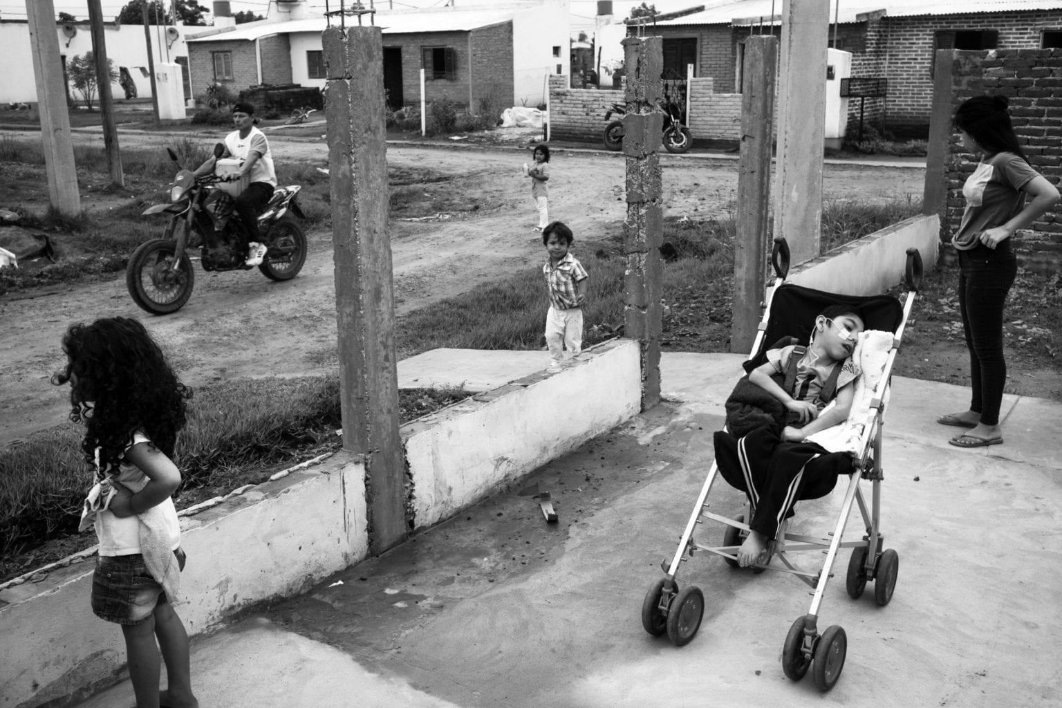 Syv-årige Thiago Cabral sidder i sin klapvogn, mens hans søskende leger rundt om ham. Hans tilstand skyldes mikrocefali, og at han ikke fik ilt nok under fødslen.